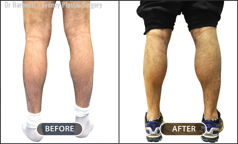 Calf augmentation with silicone implants.