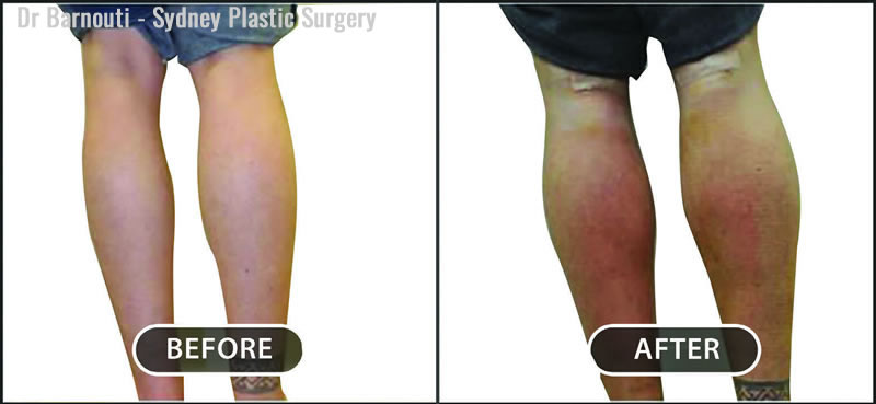Natural calf augmentation using symmetrical implants.