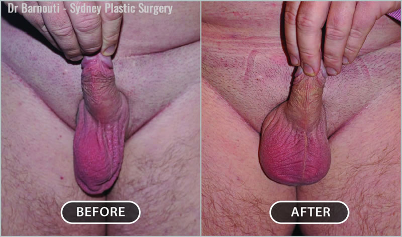 Left testicular implant surgery