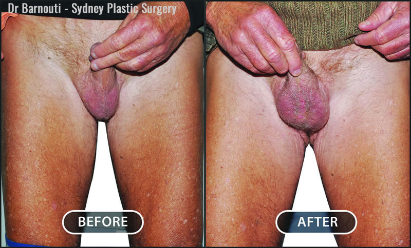 Right testicular implant surgery.