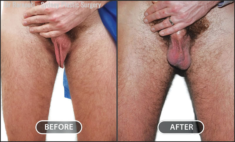 Bilateral testicular implant surgery.
