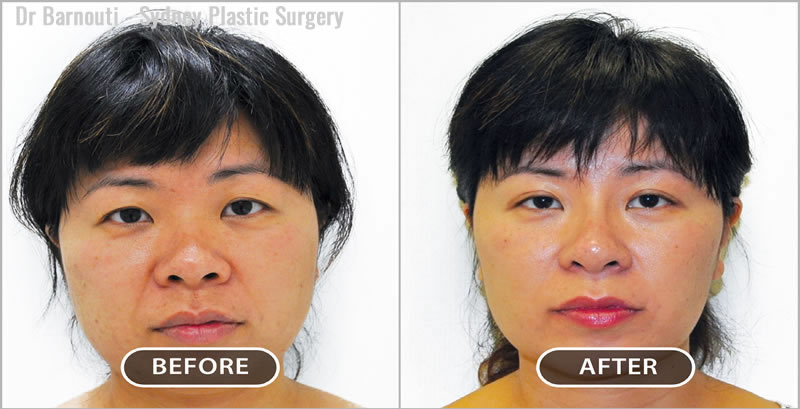Asian Blephararoplasty.