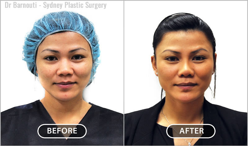 This patient had Asian rhinoplasty, including the insertion of a nasal implant.