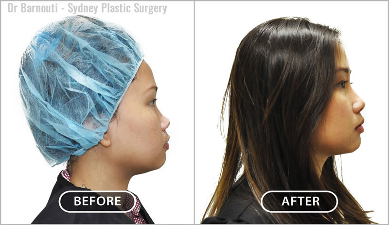 Augmentation rhinoplasty with a nasal implant.