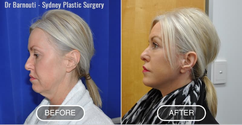 Face/Neck lift and laser treatment