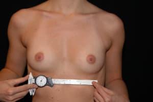 Exact Millimetric Measurements - Breast Augmentation