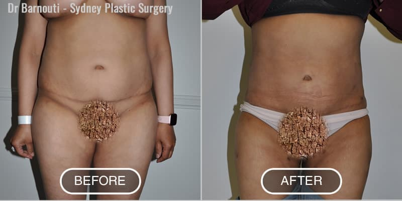 Before and after abdominal and inner thighs liposuction