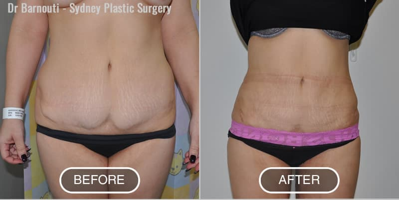 Abdominal and inner thighs liposuction