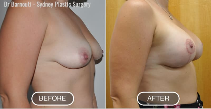 Lift and 320cc round implants