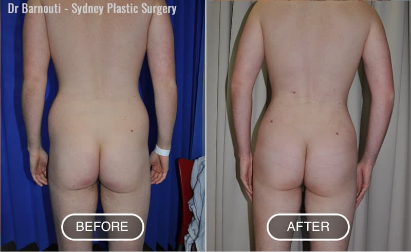 Before and after Buttock implants and Liposuction.
