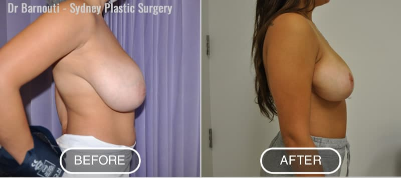 Breast Reduction - Before and After