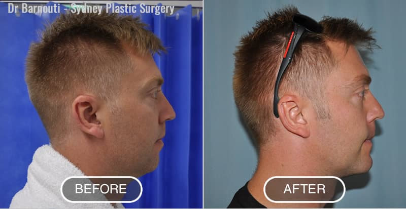 Neck Liposuction and Chin Implants Surgery