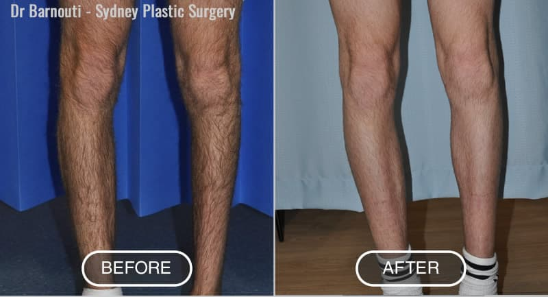 Calf Augmentation Before After
