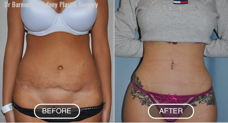 Before - Initial Surgery performed by others. After: Revision abdominoplasty and sculpture by Dr Barnouti